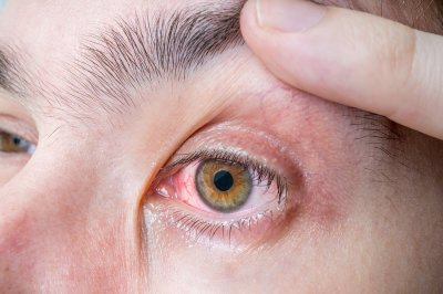 Tips to prevent eye injuries at home in Chicago